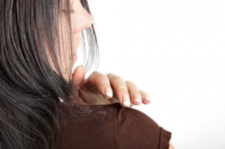 5 traitements naturels pour lutter contre les pellicules